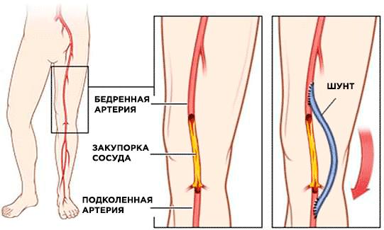 Шунтирование сосудов ног