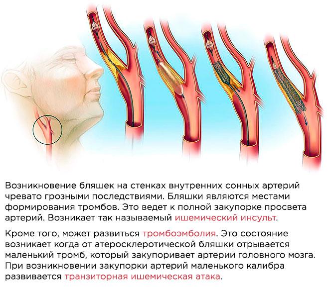 Стентирование сонных артерий