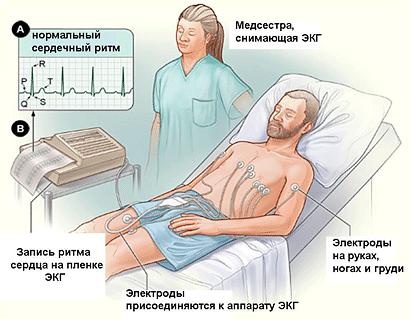 Электрокардиография сердца